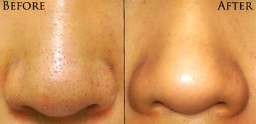 DIY Blackhead Remover Original Before and After Picture